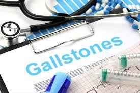 Gall stone (Cholelithiasis) : पित्त की पथरी के कारण, लक्षण और बचाव !