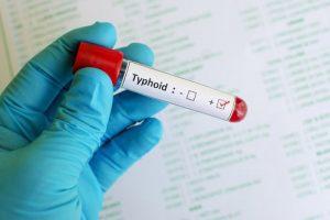 Typhoid fever :  मियादी बुखार के कारण, लक्षण और आयुर्वेदिक उपचार !