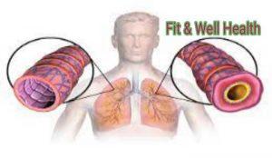 Read more about the article Asthma in hindi- जानिए दमा का कारण और घरेलू इलाज क्या है