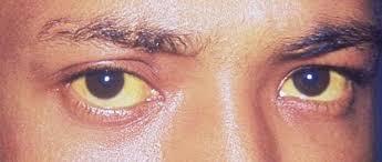 Jaundice पीलिया के लक्षण और रामबाण घरेलू उपचार