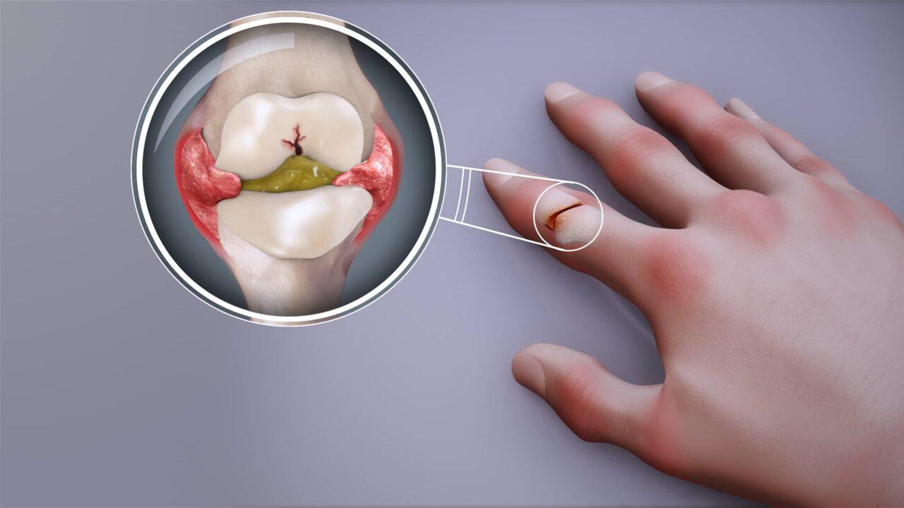 You are currently viewing Arthritis in Hindi अर्थराइटिस, (गठिया) क्या है और इसका उपचार ऐसे करें